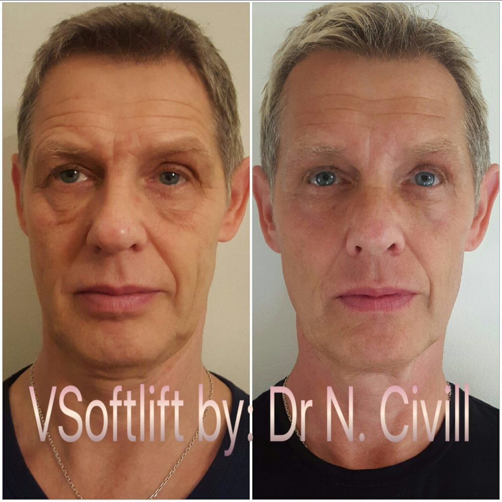 vsoft lift by nr nuria civill